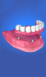 Illustration of the ALL-ON-4® Implant Dentures