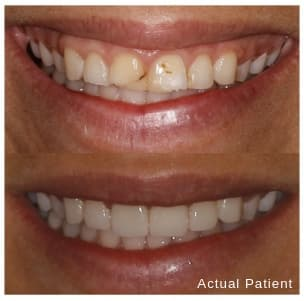 Before and after images of a patient's smile with veneers in Oviedo, FL