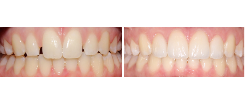 An actual cosmetic dentistry of Your Oviedo Dentist