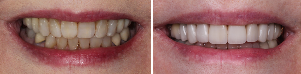 Smile gallery photo of an actual cosmetic dentistry of Your Oviedo Dentist